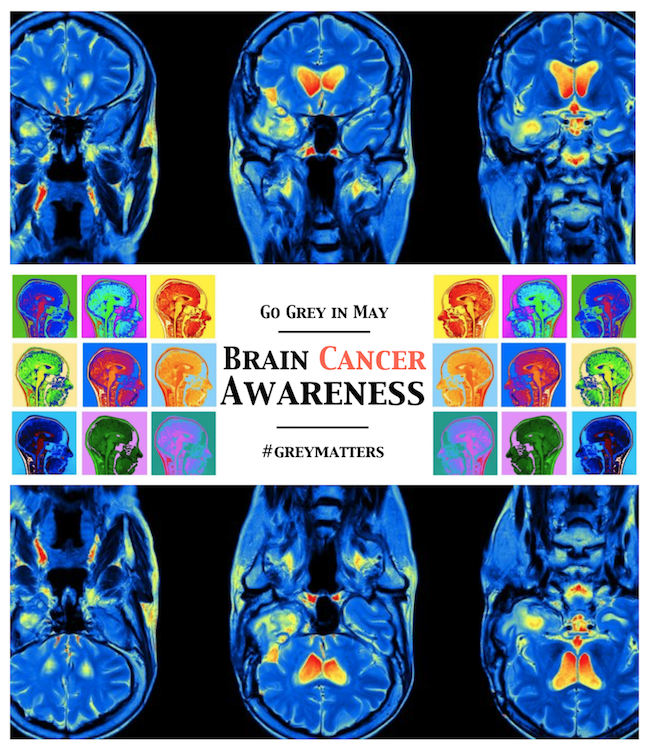 Brain Cancer Awareness Raise the Relm Go Grey in May Promo Tom Roderick Art